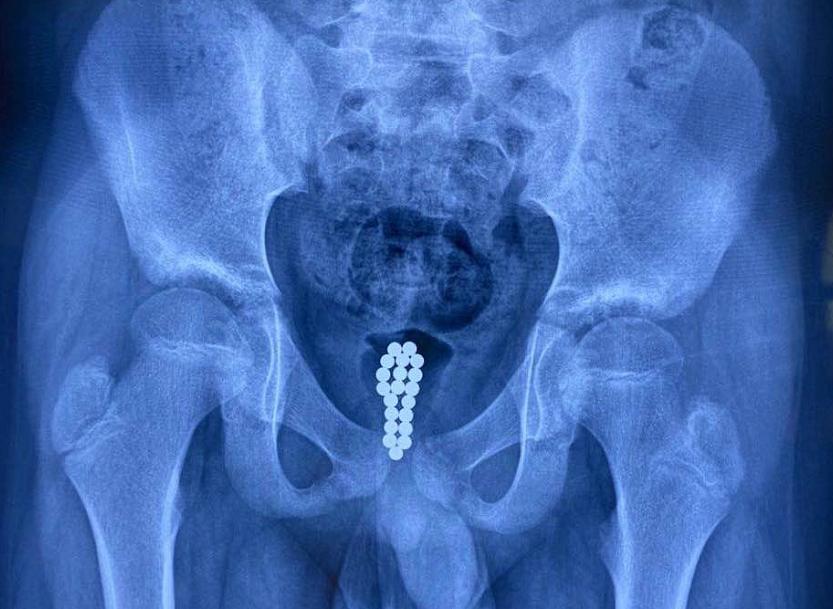 痛!东莞11岁男童尿血,原来膀胱里藏着20颗磁力珠…插图6