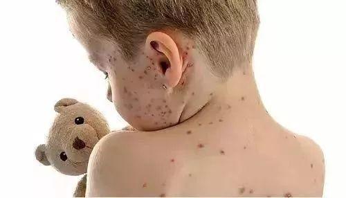 突发!2个孩子被感染!东莞这个传染病进入高发期!严重会致死!插图6